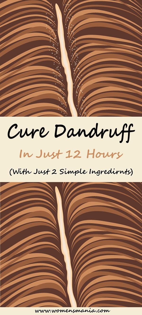 How To Cure Dandruff Overnight