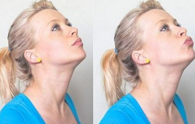 exercise to reduce chin fat